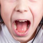 イヤホン難聴、ヘッドフォン難聴の症状や原因、対策!!音量に注意!!治療はできるの??